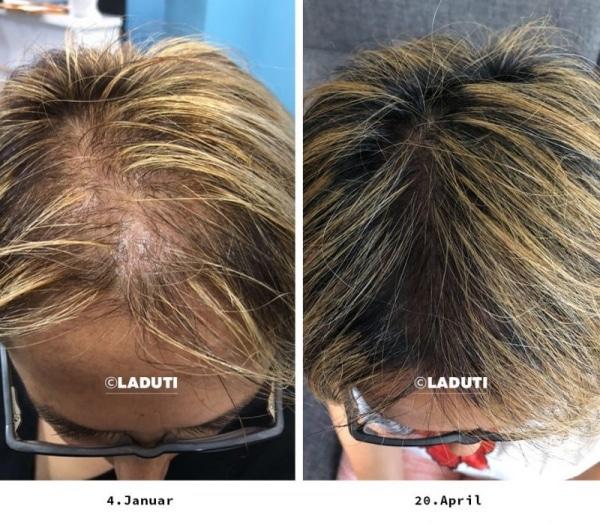 Mittel Gegen Haarausfall Frauen