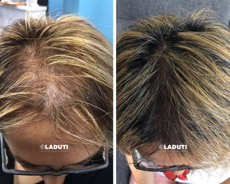 Mittel-gegen-Haarausfall