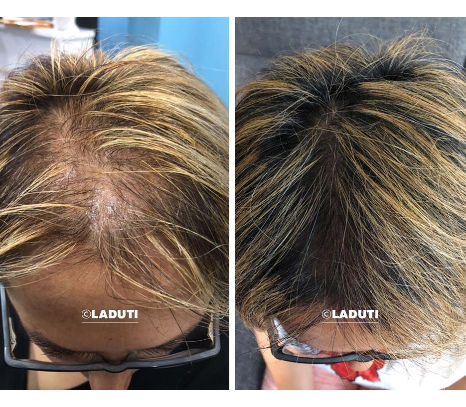 Pillen gegen Haarausfall
