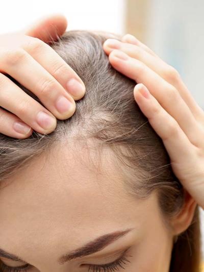 Haarausfall-Frauen
