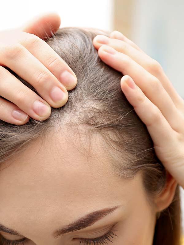 Haarausfall frau bei frisur Haarausfall bei
