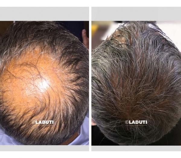Haarwuchsmittel-natuerlich