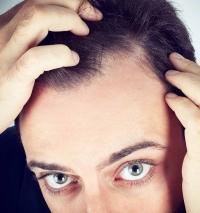 Diffuser-Haarausfall