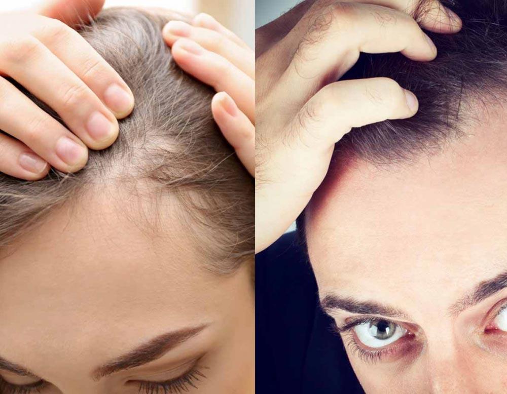 diffondere la perdita di capelli